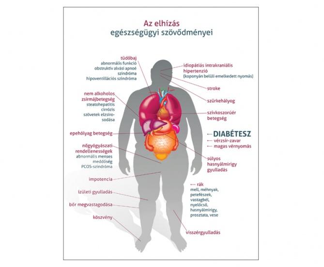 magas vérnyomás és túlsúlyos kapcsolat